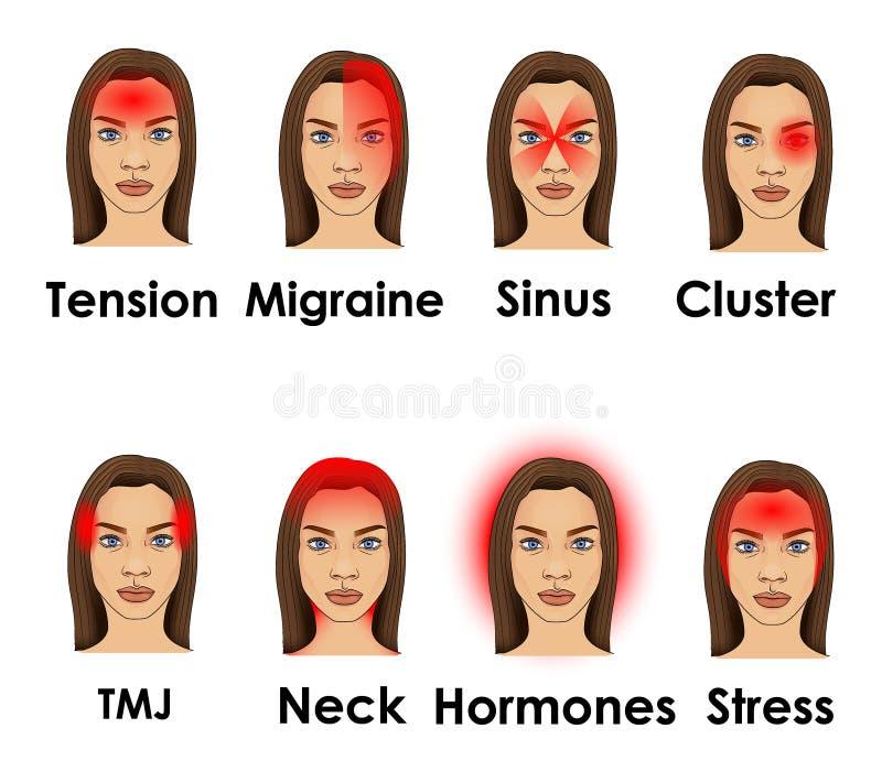 Typ ilustrujący na kobiecie migrena stawiają czoło ilustracji