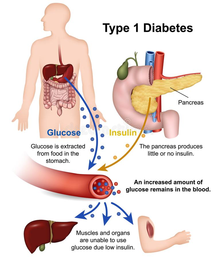 Typ - 1 medicinska illustration för sockersjuka med engelsk beskrivning vektor illustrationer