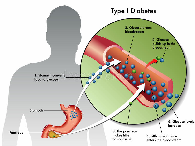 Type 1 diabetes vector illustration