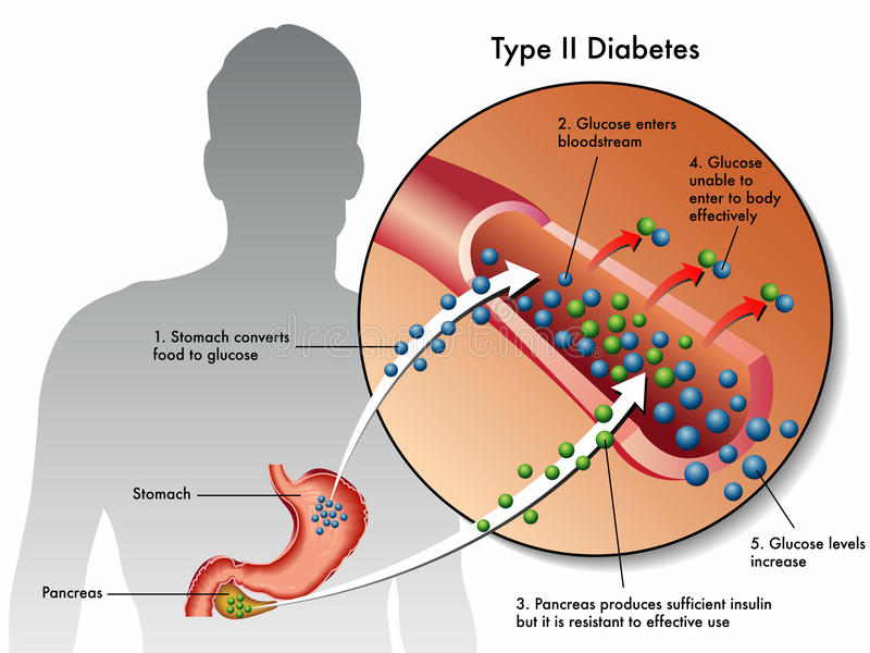 Type 2 diabetes vector illustration