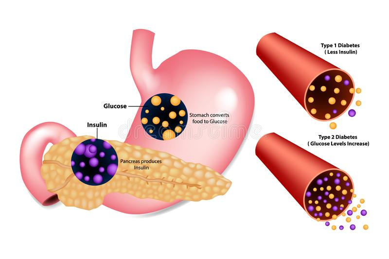 Type de diabète illustration de vecteur