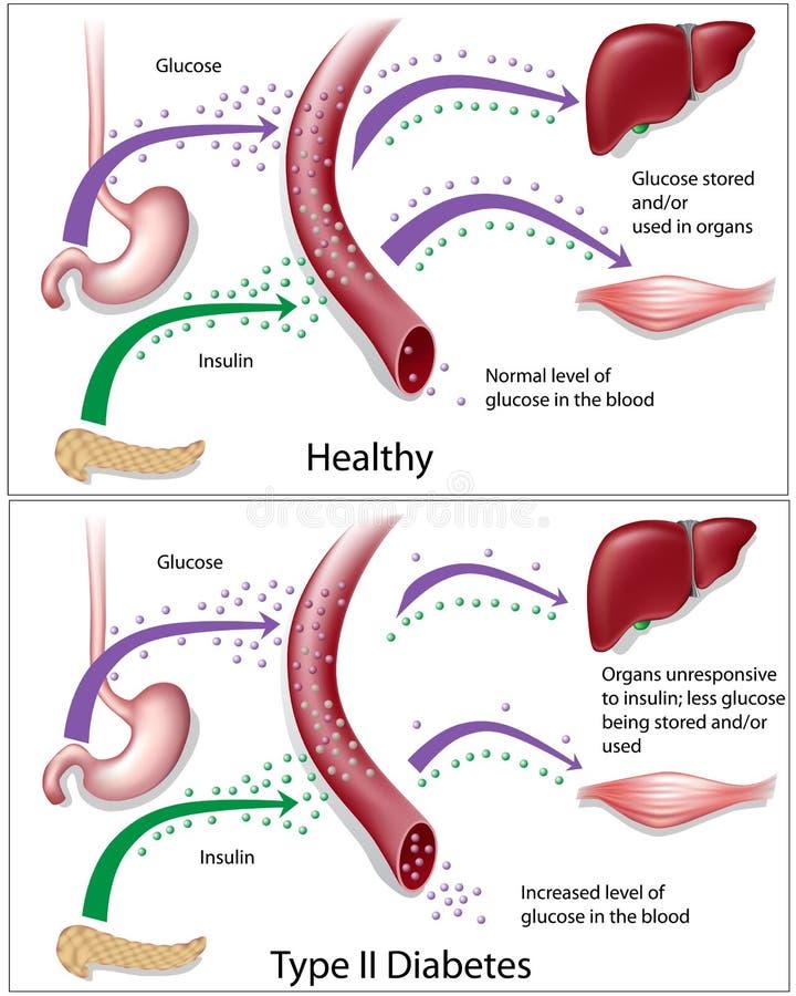 Type - diabetes 2 stock illustratie