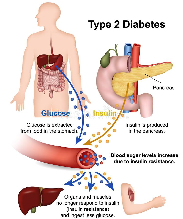 Type 2 diabetes medical  illustration with english description. Eps 10 stock illustration