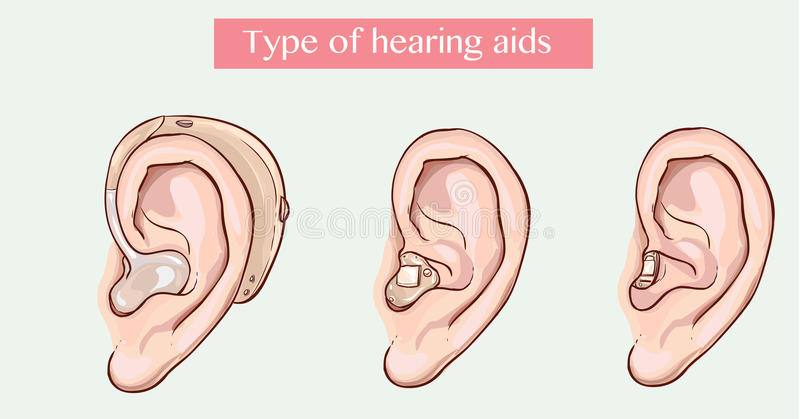 Type of hearing aids. Vector illustration of a Type of hearing aids royalty free illustration