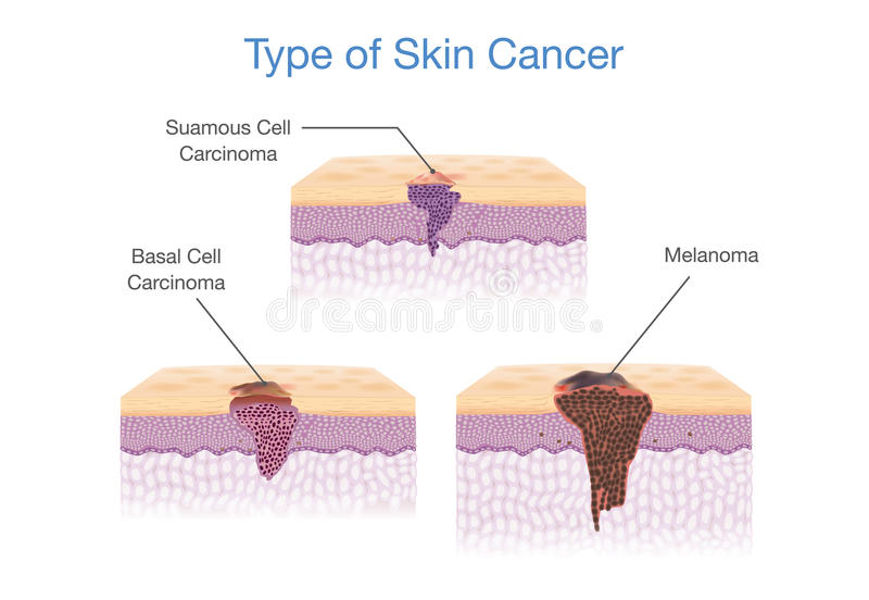 Type of Skin Cancer in 3D vector style. stock illustration