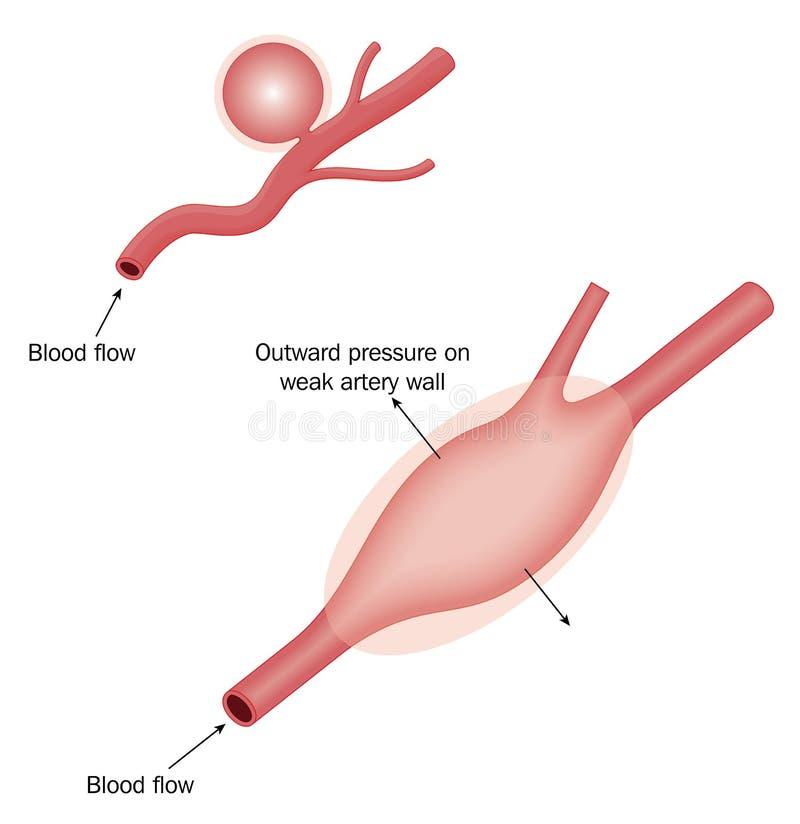 Typer av aneurysmen stock illustrationer