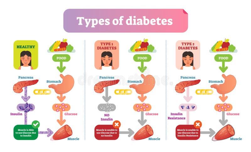 Typer av den enkla medicinska vektorillustrationen för sockersjuka schemalägger Informationsdiagram om hälsovård royaltyfri illustrationer
