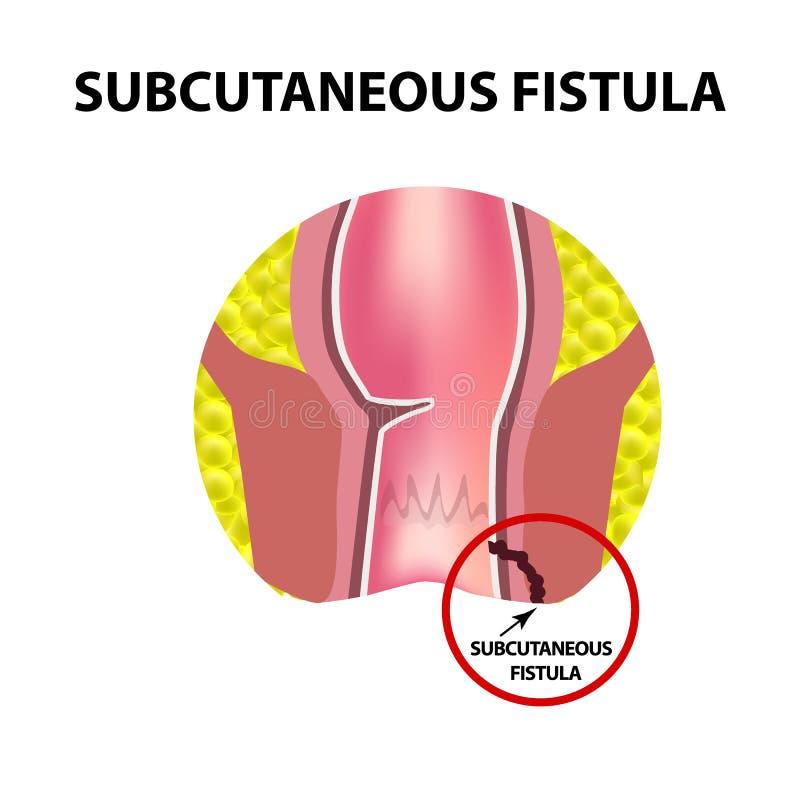 Typer av fistlar av ändtarmen Paraproctitis stock illustrationer