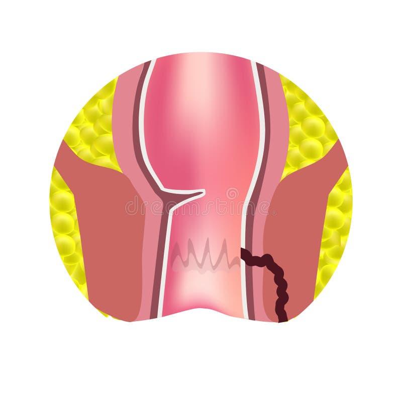 Typer av fistlar av ändtarmen Paraproctitis antsy Böld av ändtarmen Infographics också vektor för coreldrawillustration stock illustrationer