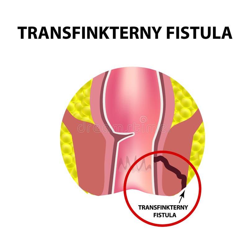 Typer av fistlar av ändtarmen Paraproctitis antsy Böld av ändtarmen Infographics också vektor för coreldrawillustration vektor illustrationer
