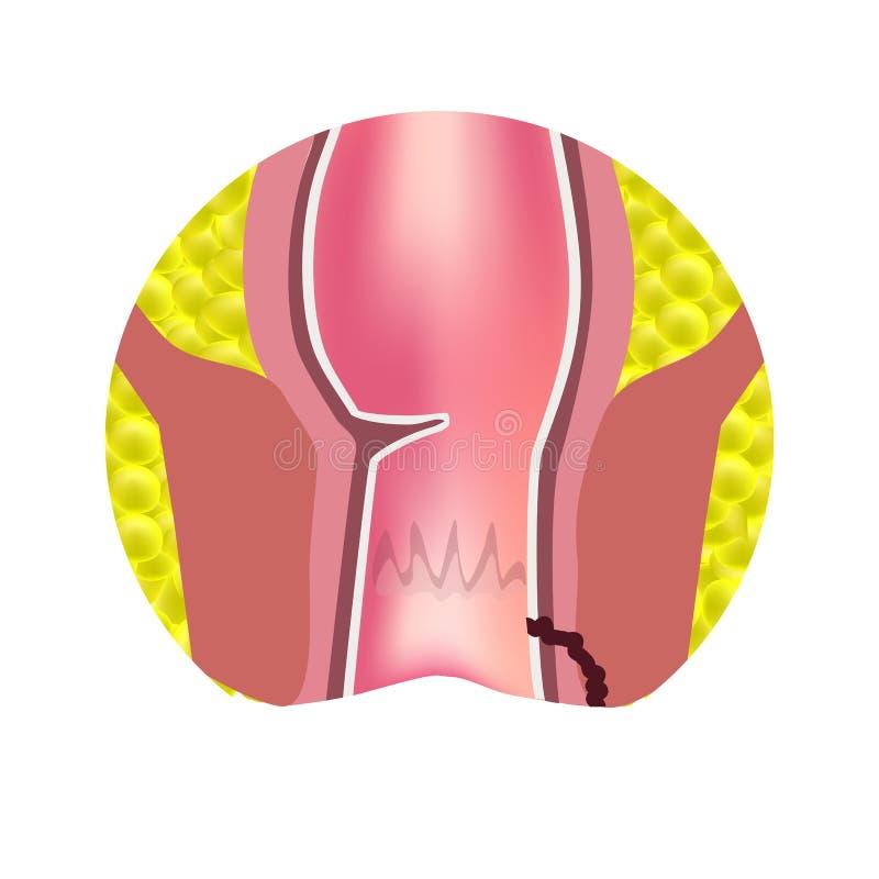 Typer av fistlar av ändtarmen Paraproctitis antsy Böld av ändtarmen Infographics också vektor för coreldrawillustration royaltyfri illustrationer