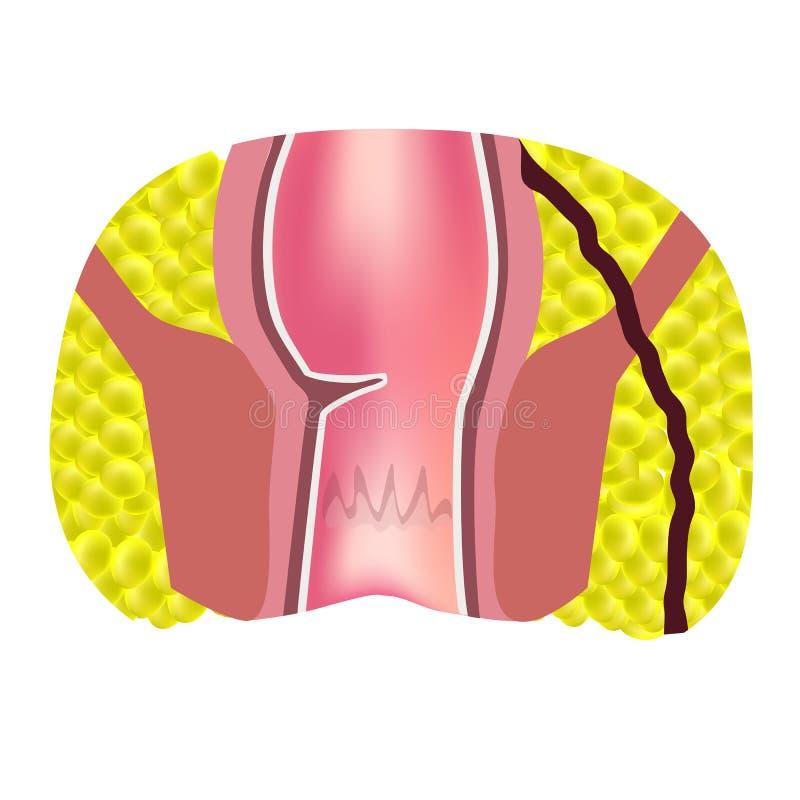 Typer av fistlar av ändtarmen Paraproctitis antsy Böld av ändtarmen Infographics vektor stock illustrationer