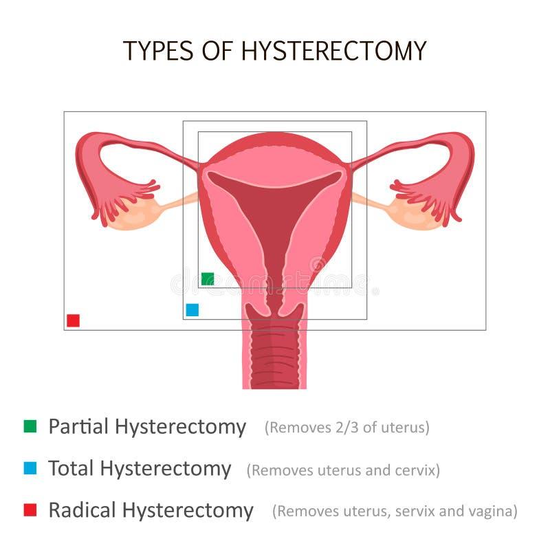Typer av hysterektomin stock illustrationer