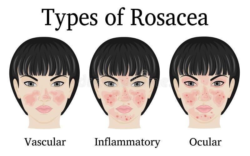Typer av Rosacea vektor illustrationer