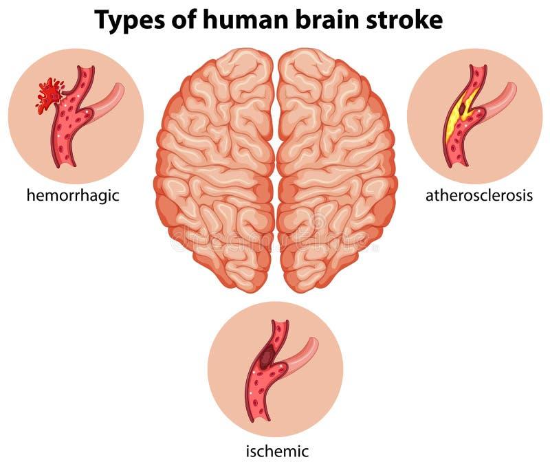 Typer av slaglängden för mänsklig hjärna vektor illustrationer