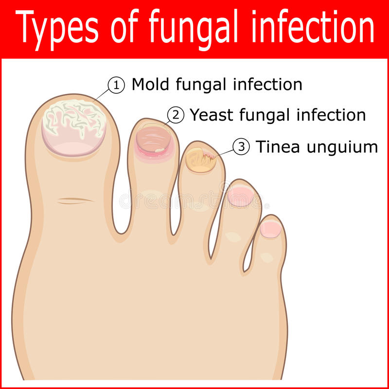Typer av svamp- infektioner vektor illustrationer