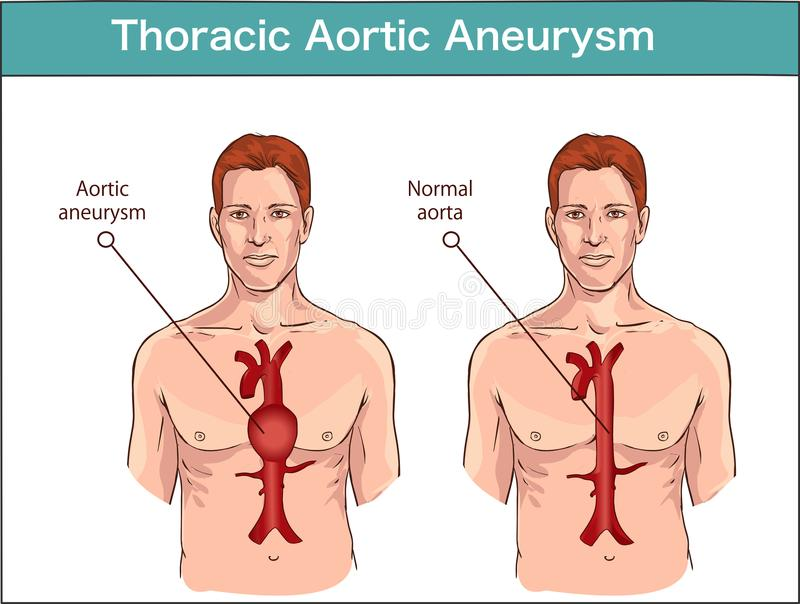 Types of abdominal aortic aneurysm. normal aorta and enlarged vessels. Vector diagram.  stock illustration