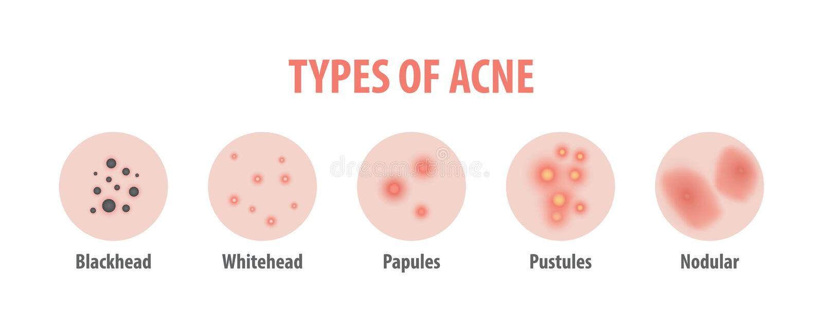 Types of acne diagram illustration vector on white background, B. Eauty concept vector illustration