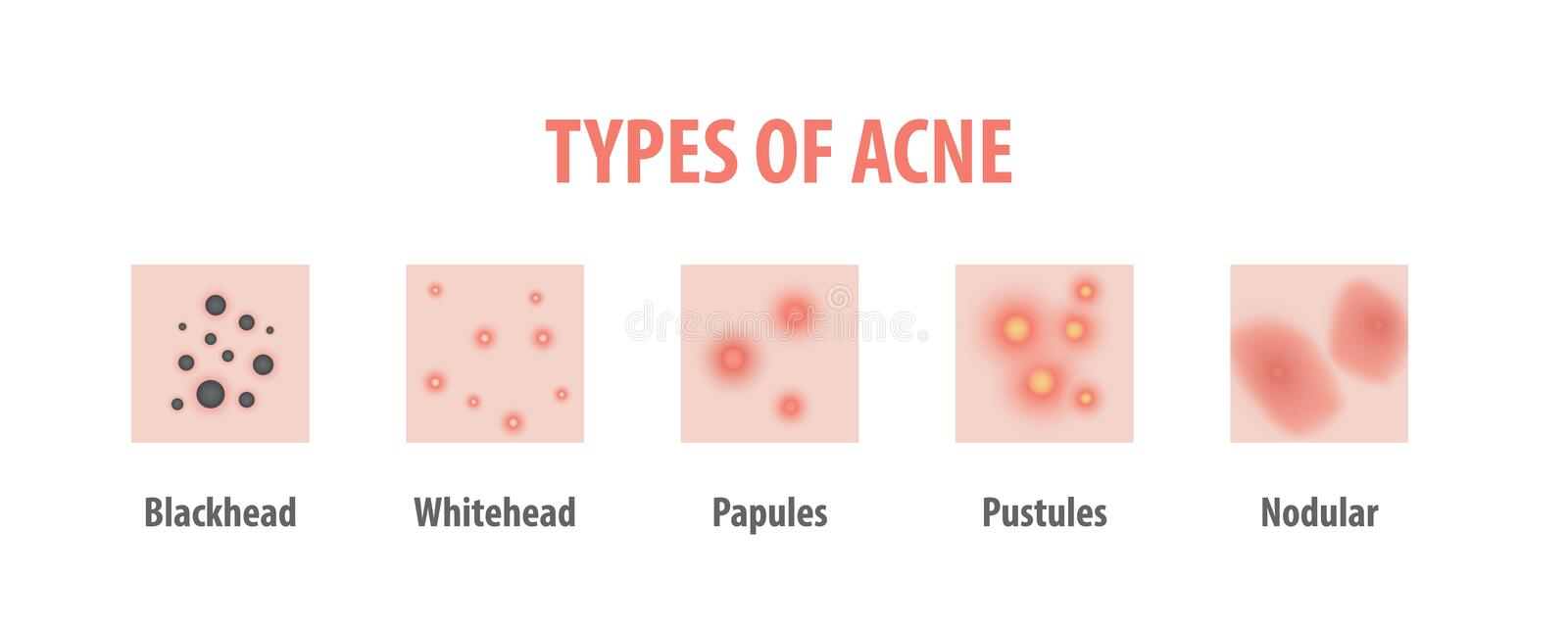 Types of acne diagram illustration vector on white background, B. Eauty concept royalty free illustration
