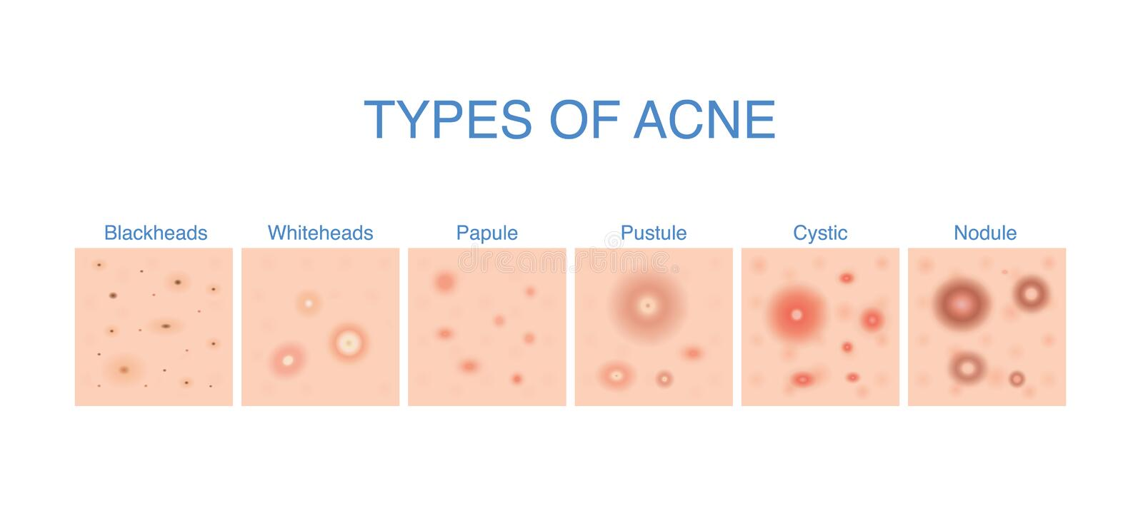 Types of Acne diagram for skin problems content. stock illustration