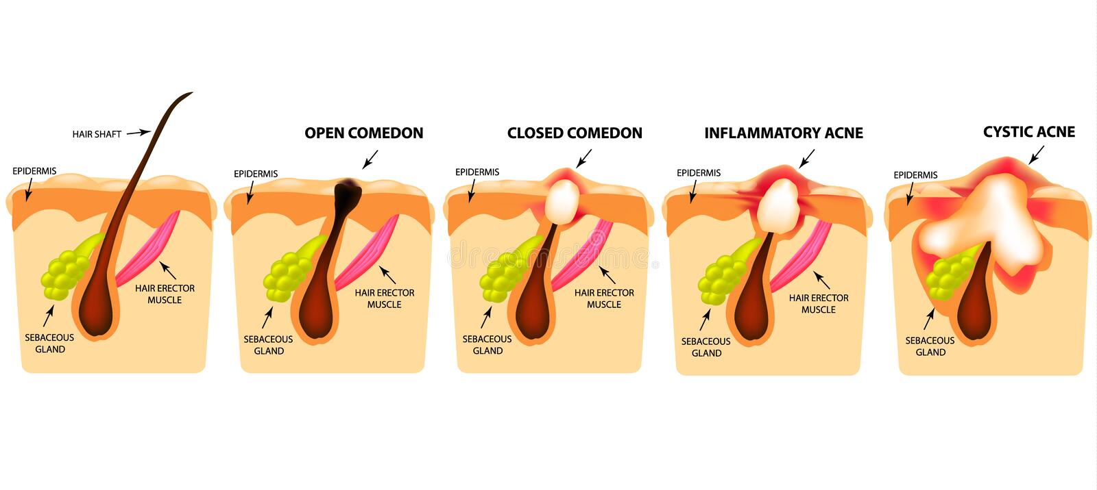 Types of acne. Open comedones, closed comedones, inflammatory acne, cystic acne. The structure of the skin. Infographics. Vector vector illustration