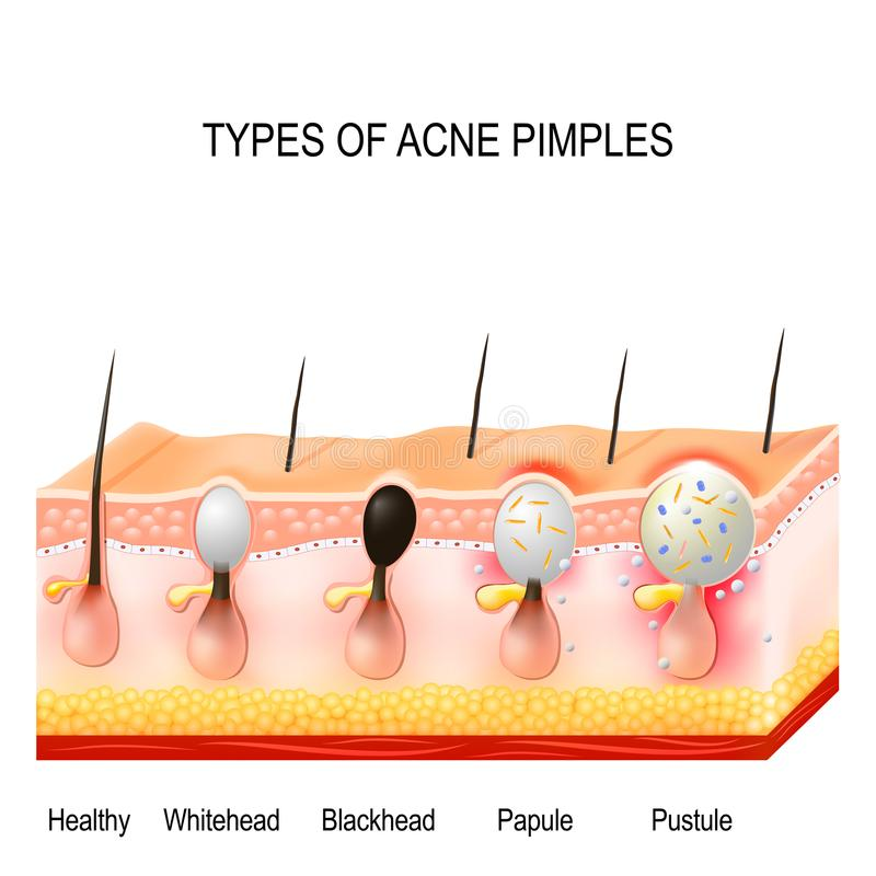 Types of acne pimples royalty free illustration