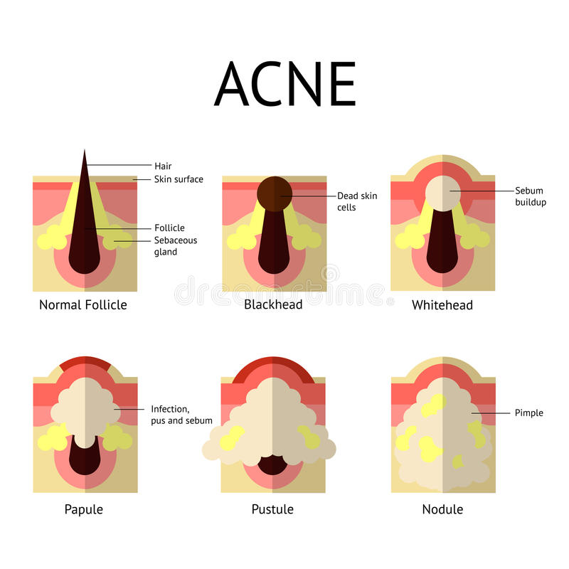 Types of acne pimples. Healthy skin, Whiteheads and Blackheads, Papules and Pustules in flat style. stock illustration