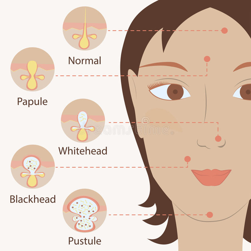 Types of acne pimples stock illustration