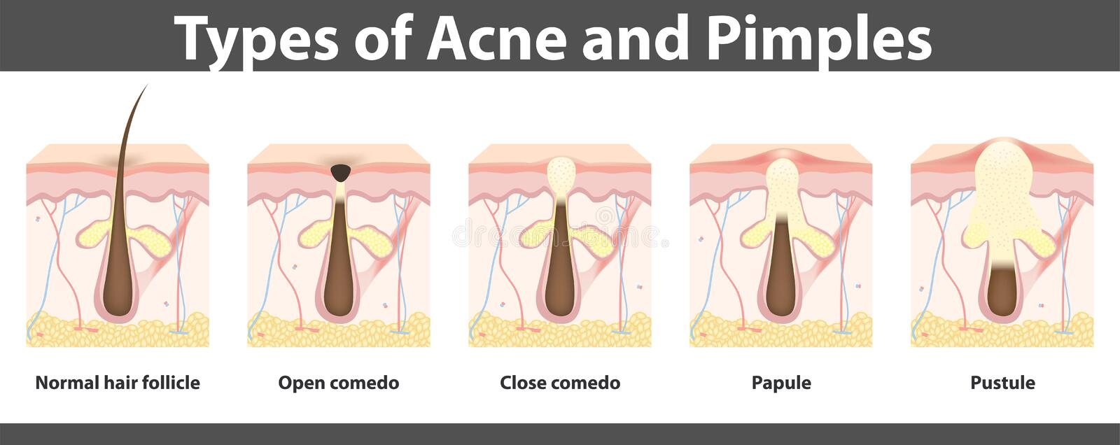 Types of acne, structure of pimple, vector illustration vector illustration