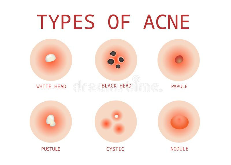 6 Types of Acne, Vector stock illustration