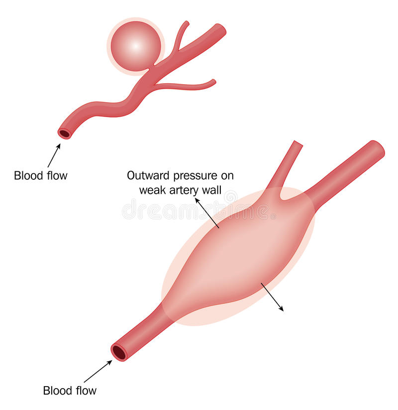 Types of aneurysm stock illustration