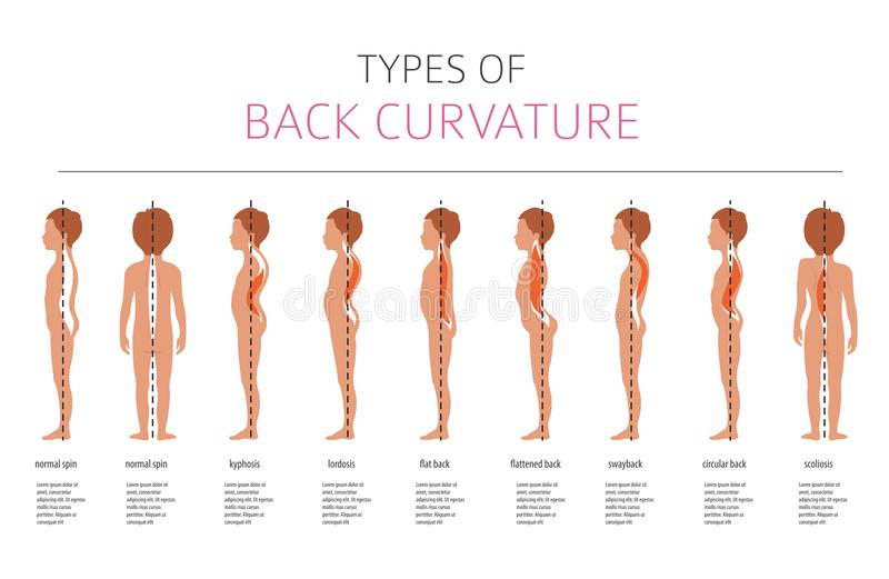 Types of back curvature. Medical desease infographic. Vector illustration vector illustration