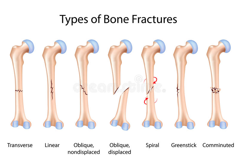 Types of bone fractures stock illustration