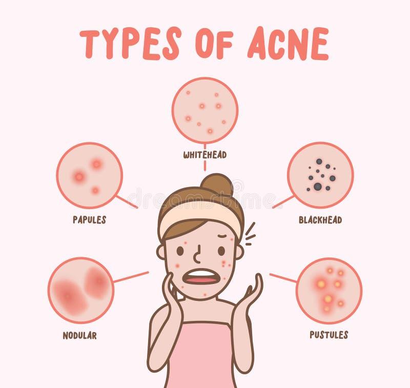 Types d'acné avec le vecteur d'illustration de bande dessinée de femme sur le CCB rose illustration stock