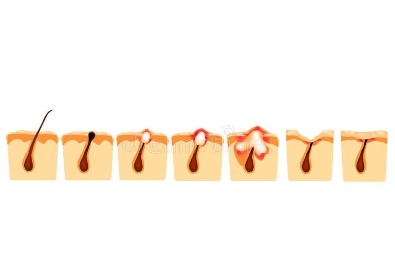 Types d'acn? Comedones fermés, comedones ouverts, acné enflammée, kystes Boutons enflammés La structure de la peau cicatrice illustration libre de droits