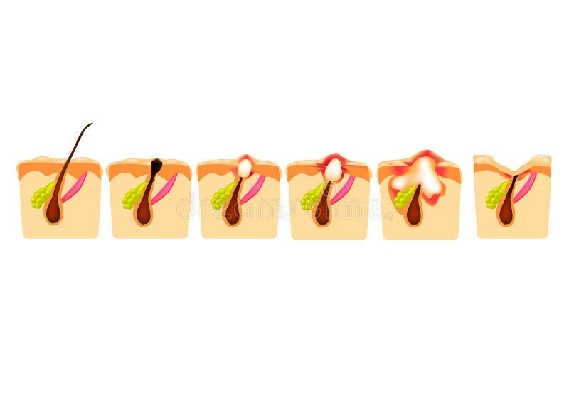 Types d'acn? Comedones fermés, comedones ouverts, acné enflammée, kystes Boutons enflammés La structure de la peau cicatrice illustration de vecteur
