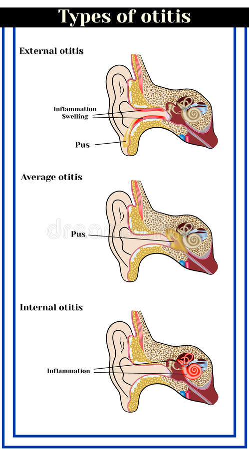 Types d'otitis : otitis externe, moyen et interne illustration stock