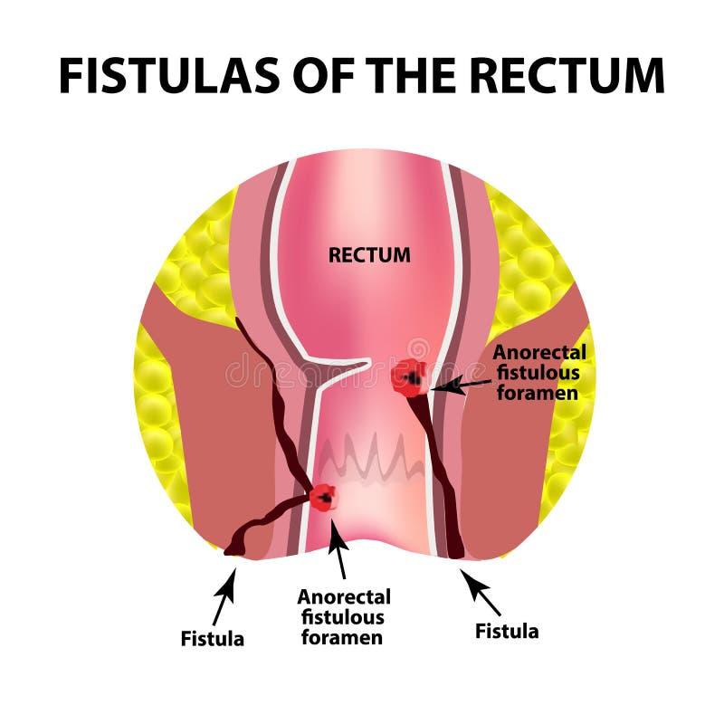 Types de fistules du rectum Paraproctitis anus Abcès du rectum Infographie Illustration de vecteur illustration stock