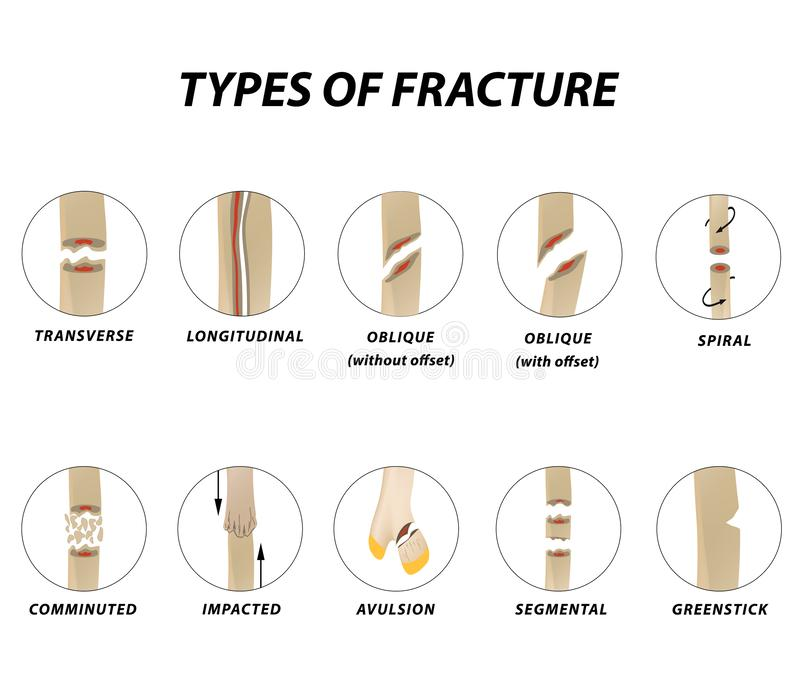 Types de fracture Ensemble d'os de fracture Infographie Illustration de vecteur sur le fond d'isolement illustration libre de droits