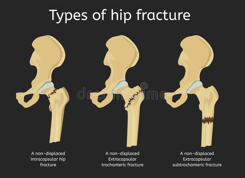Types de fracture de hanche illustration stock