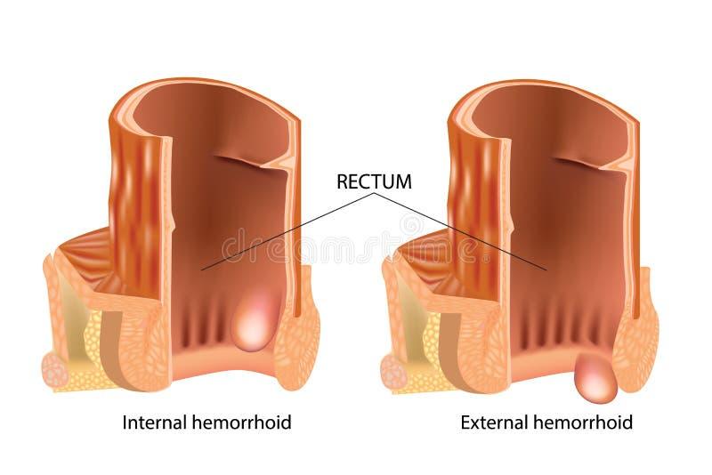 Types de hémorroïdes Les hémorroïdes, ont également appelé des piles illustration de vecteur