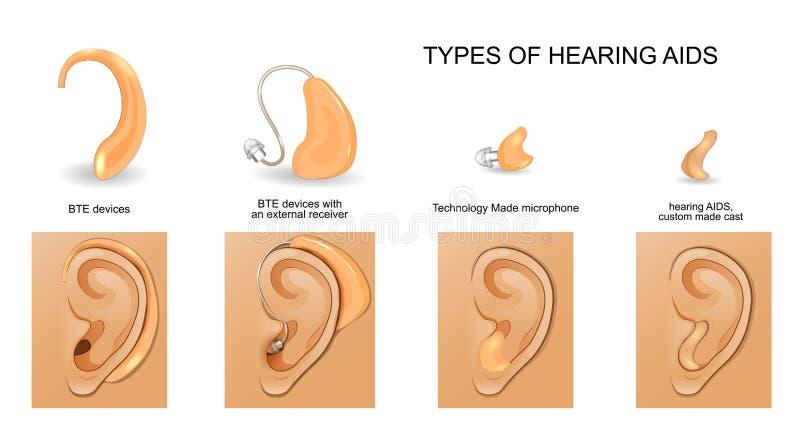 Types de prothèses auditives illustration de vecteur