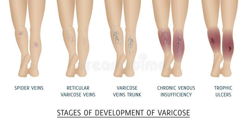 Types de veines variqueuses chez les femmes illustration libre de droits