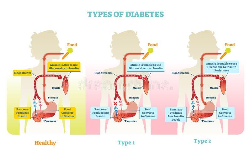 Types of diabetes vector illustration diagram scheme. Medical educational information royalty free illustration