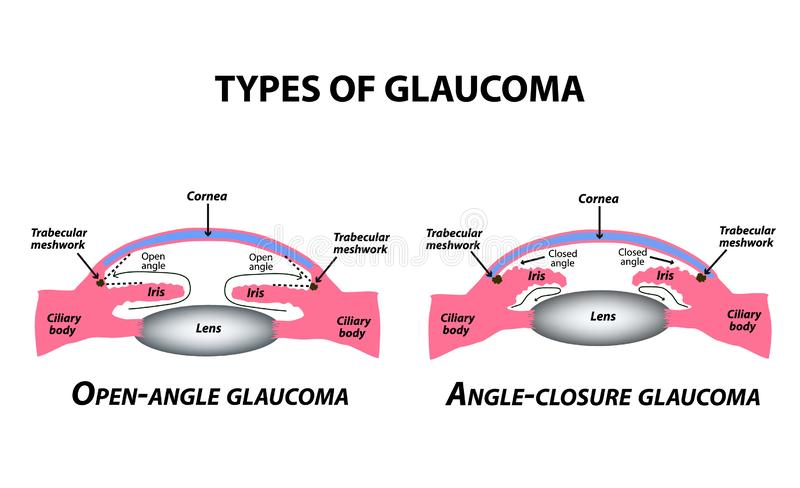 Types of glaucoma. Open-angle and angle-closure glaucoma. The anatomical structure of the eye. Infographics. Vector stock illustration