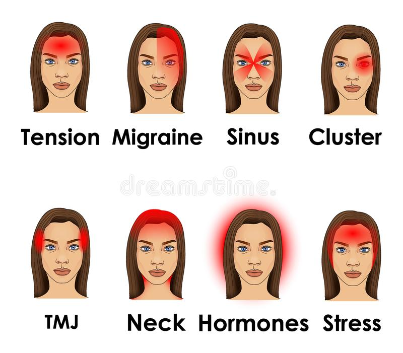 Types of headache illustrated on a woman face royalty free stock image