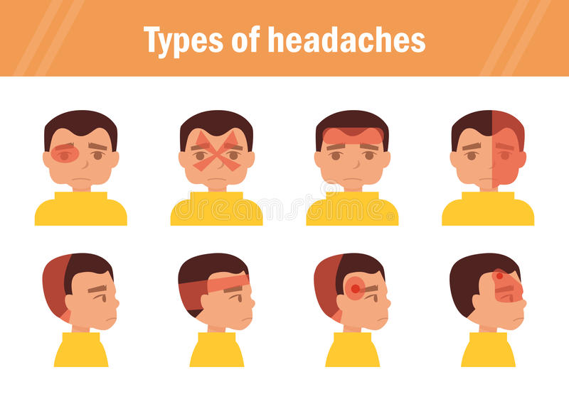 Types Of Headaches. Vector. Stock Vector - Illustration of ...