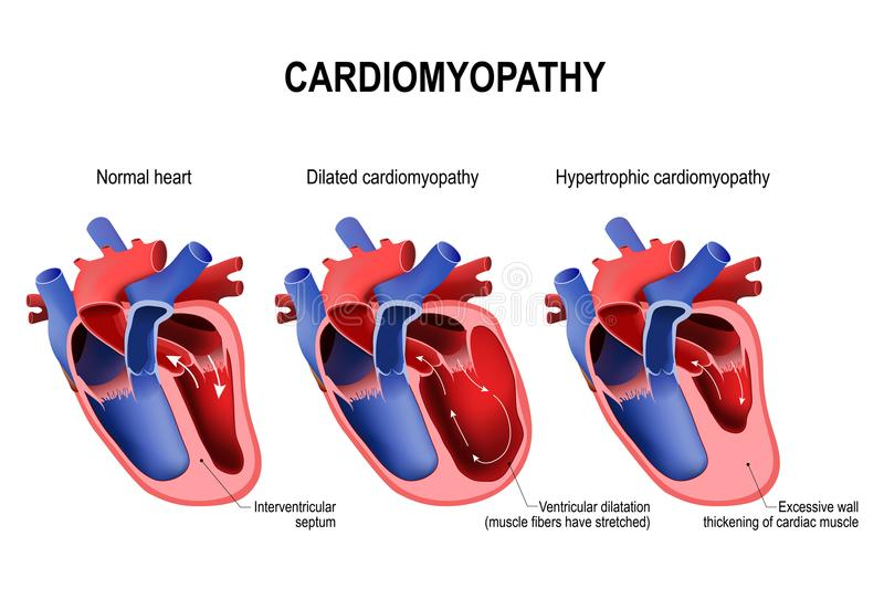 Hypertrophic cardiomyopathy, dilated cardiomyopathy and healthy stock illustration