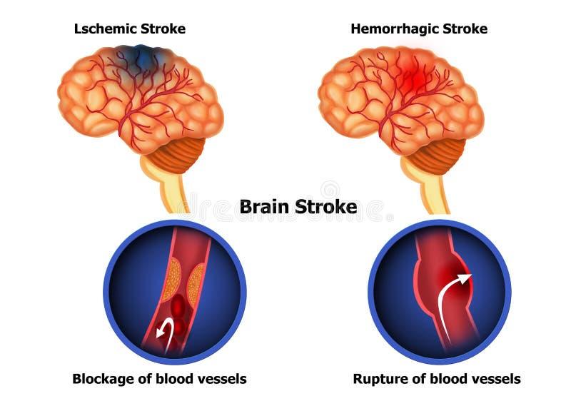 Types Of Human Brain Stroke Stock Illustration - Illustration of ...