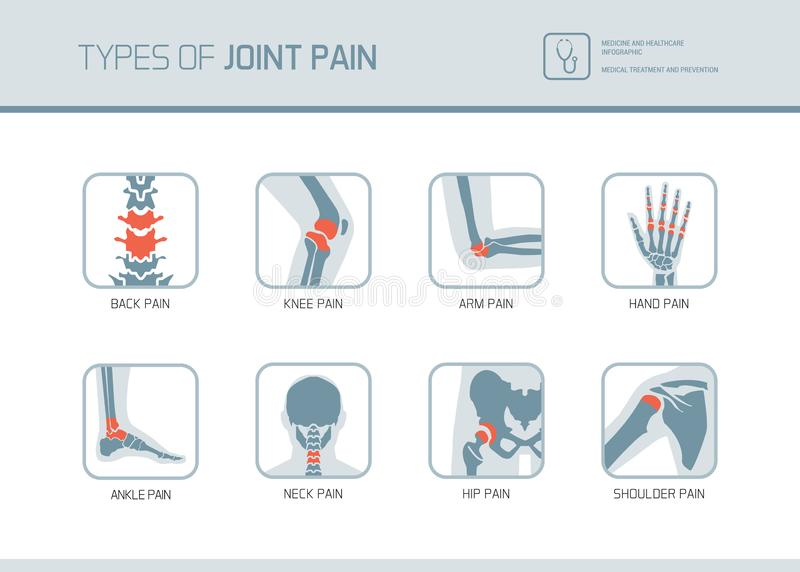 Types of joint pain vector illustration